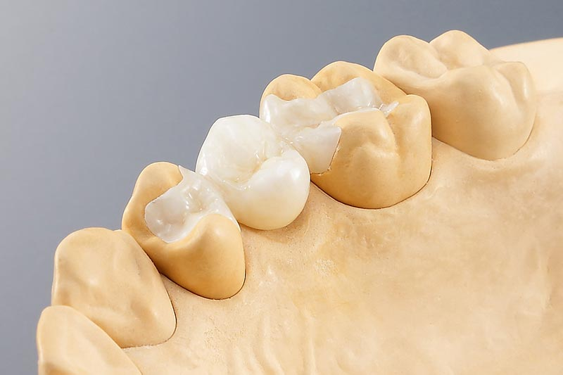 Dental Milling Solutions - bridge