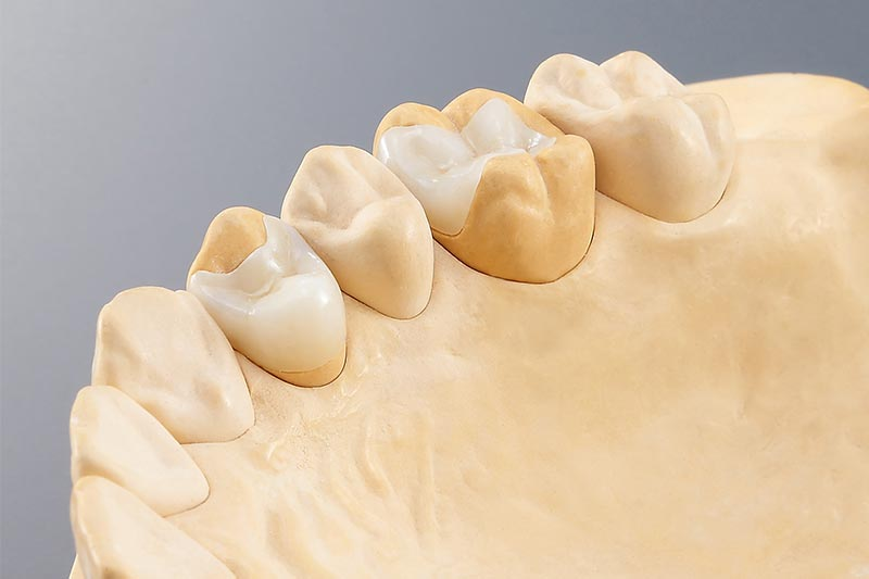 Dental slijpoplossingen - inlay onlay